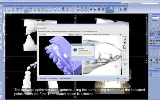 Aligning dental models scanned with Planmeca ProMax® 3D using dental models scanned in occlusion