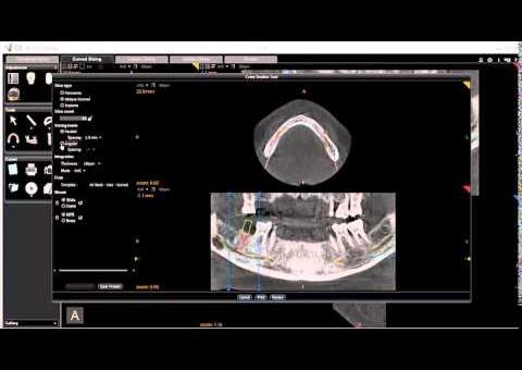 CS 3D Imaging -  Cross Sectional Tool