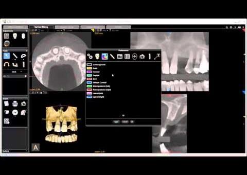 CS 3D Imaging -  Editing Preferences