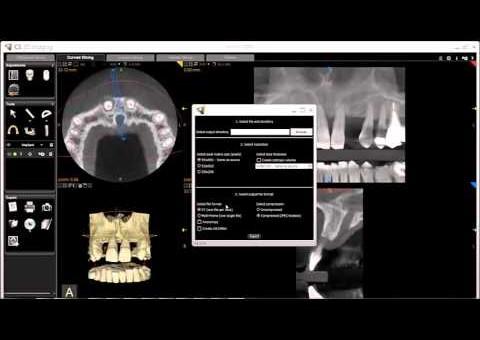 CS 3D Imaging - Exporting Volumes