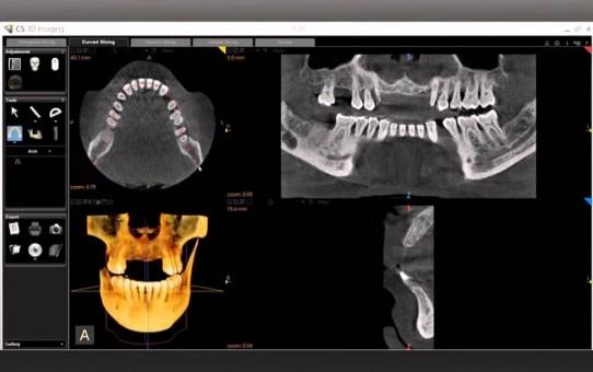 CS 3D Imaging Reconstructed Panoramic Image