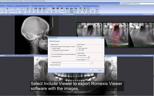 Export 2D images from Planmeca Romexis®