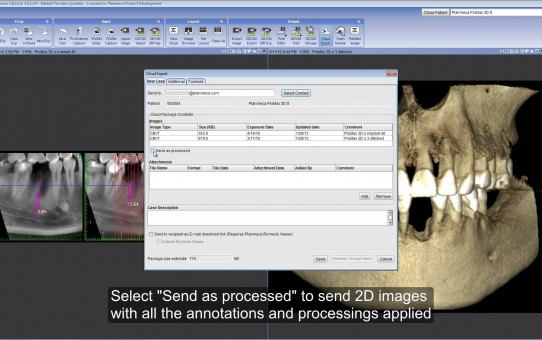 Exporting and importing images with Planmeca Romexis® Cloud