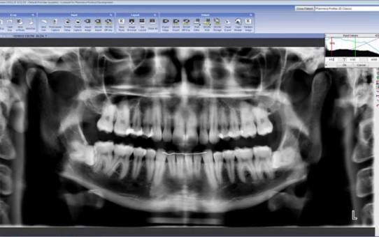Image Processing Tools in Planmeca Romexis® 2D module