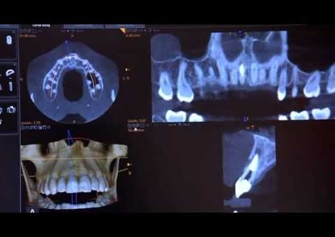Implant Consultation with the CS 9300