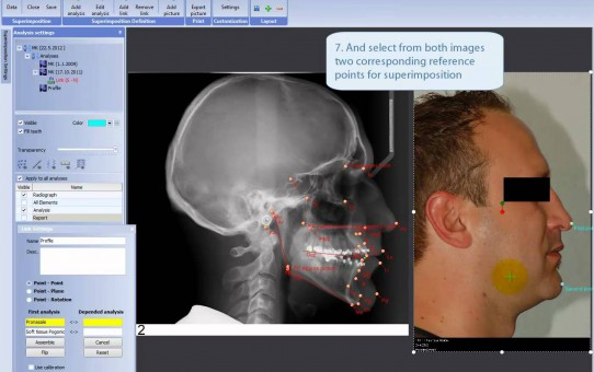 Making superimposition of analysis and photo in Planmeca Romexis® Cephalometric Analysis module