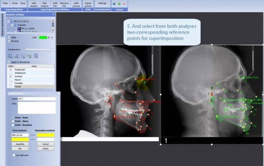 Making superimposition of two analyses in Planmeca Romexis® Cephalometric Analysis module