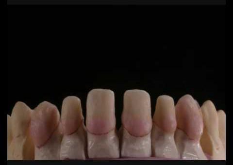 Odontologia Estética 02 - Dr. Rogério Marcondes - Curitiba / PR / Brasil