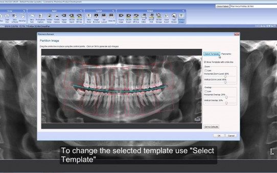 Partitioning a 2D image in Planmeca Romexis®