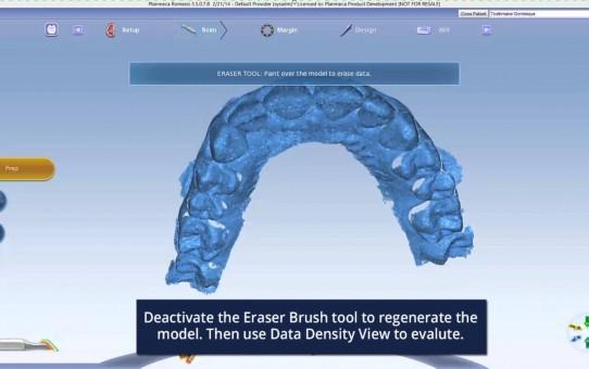 Planmeca PlanCAD® Easy -- full arch scanning