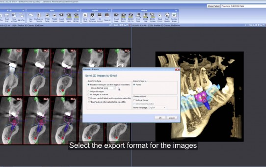 Send 2D images by email from Planmeca Romexis®