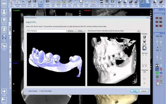 Superimposing impression with CBCT in Planmeca Romexis® 3D module