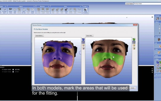 Using Deviation Map Tool in Planmeca Romexis® ProFace and Surface module