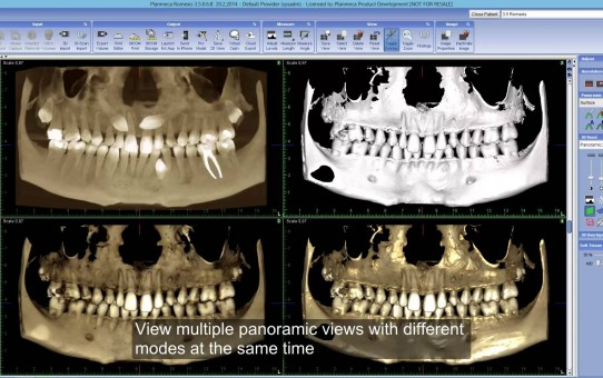 Using new Rendered Panoramic Views in Planmeca Romexis® 3D module