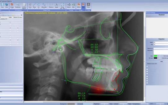 Visual Treatment Objective in Planmeca Romexis® Cephalometric Analysis module