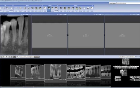 Working with images in templates in Planmeca Romexis® 2D module