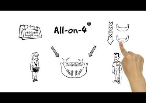 All-on-4® treatment concept for failing dentition