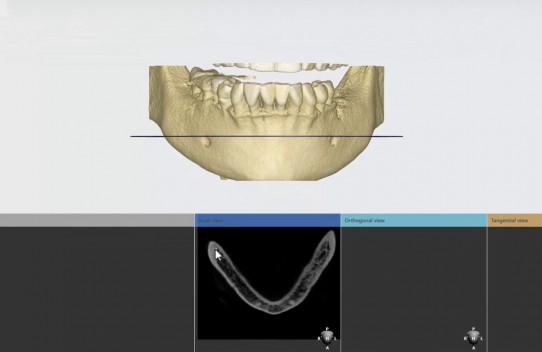 Implant Studio Cropping panoramic curve