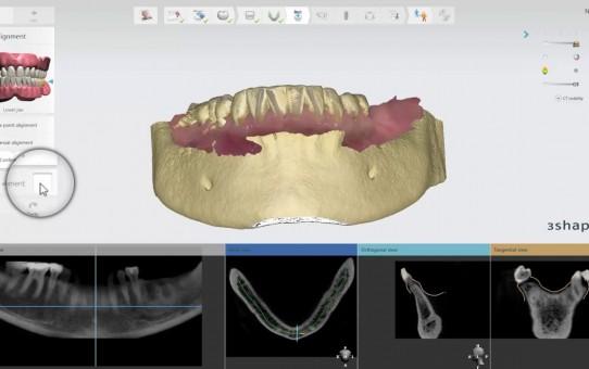 Implant Studio Scan Alignment Nerve Definition