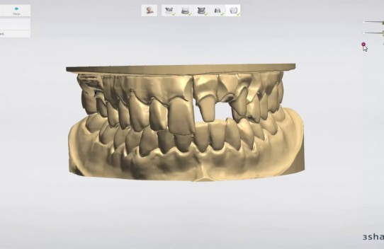 3. E scanner – Single Crown Model Scanning