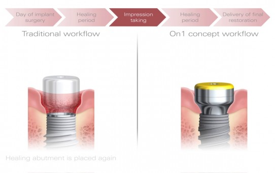 The On1 concept – the best of both worlds  | Nobel Biocare
