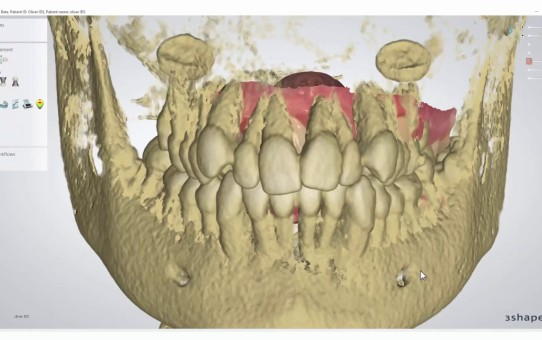 How to Import a CBCT Scan