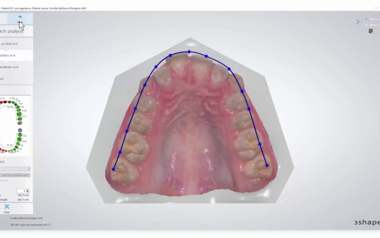 How to Make a Dental Arch