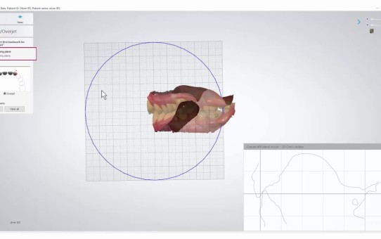 How to Measure Overjet and Overbite