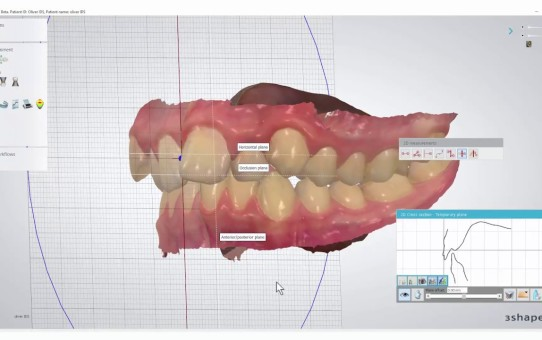 How to Use the Cross Section Tool. Part 1 - 2D Measurements