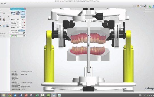 How to use the Virtual Articulator in Ortho Analyzer