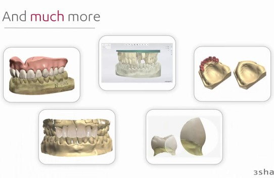 What's New in Dental System 2017