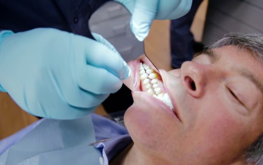 What same day dentistry means to my practice – Dr. Vincent J. Prestipino interview