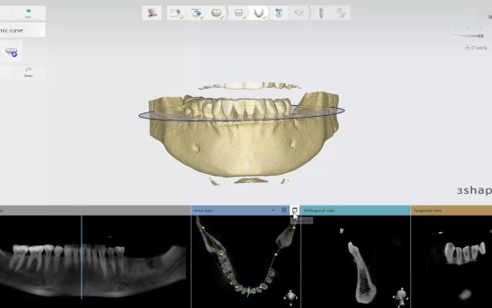 3Shape Implant Studio 2017 - Cropping CT Scans and Defining the Panoramic Curve