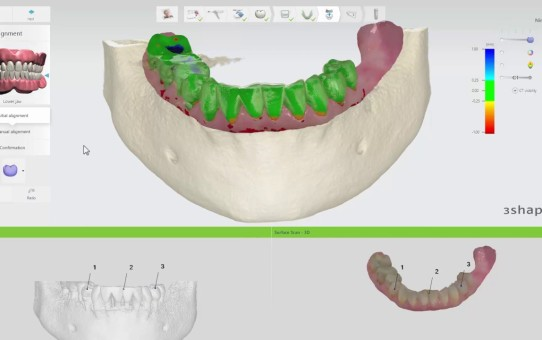 3Shape Implant Studio 2017 – Scan Alignment and Nerve Definition