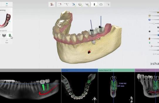 3Shape Implant Studio 2017 – Implant Planning
