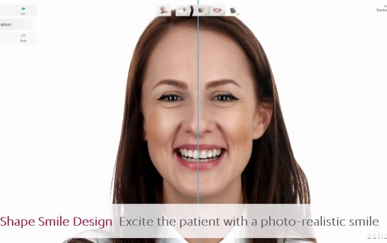 3Shape Smile Design – Excite the patient with photo-realism