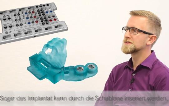 BEGO Implant Systems - We explain: Backwardplanning