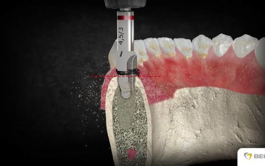 BEGO Semados® RS/RSX Implantate / Implants – chirurgisches Vorgehen / surgical procedure