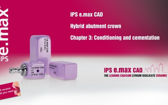 IPS e.max CAD Hybrid abutment crown   Chapter 3: Conditioning and cementation