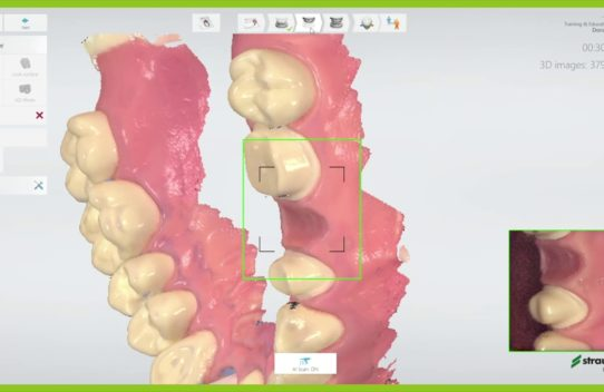 How to scan a single crown case on tooth for Straumann® Un!que Services