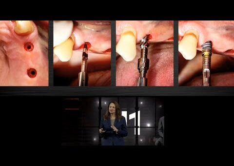 Clinical experience developing the Nobel Biocare N1™ concept │ Dr. Annette Felderhoff-Fischer