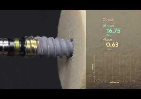 Nobel Biocare N1™   Predictable implant insertion torque