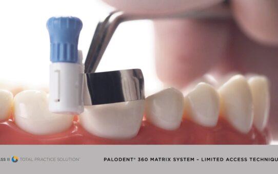 Palodent® 360 Matrix System - Limited Access Technique | Dentsply Sirona